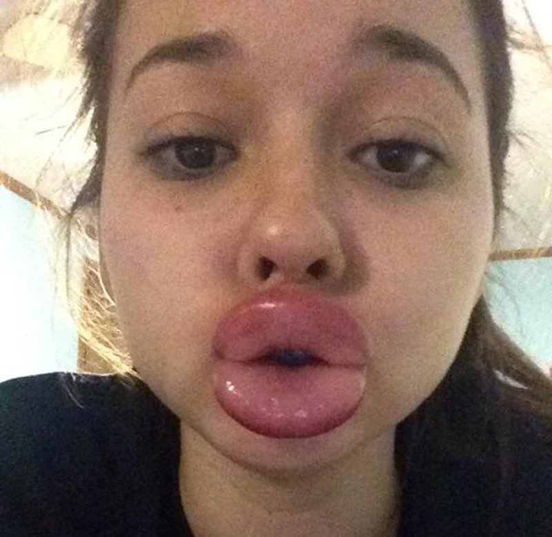 Bloom's Guide to the Best of the Internet: The Kylie Jenner Lip Challenge - The Eagle's Cry